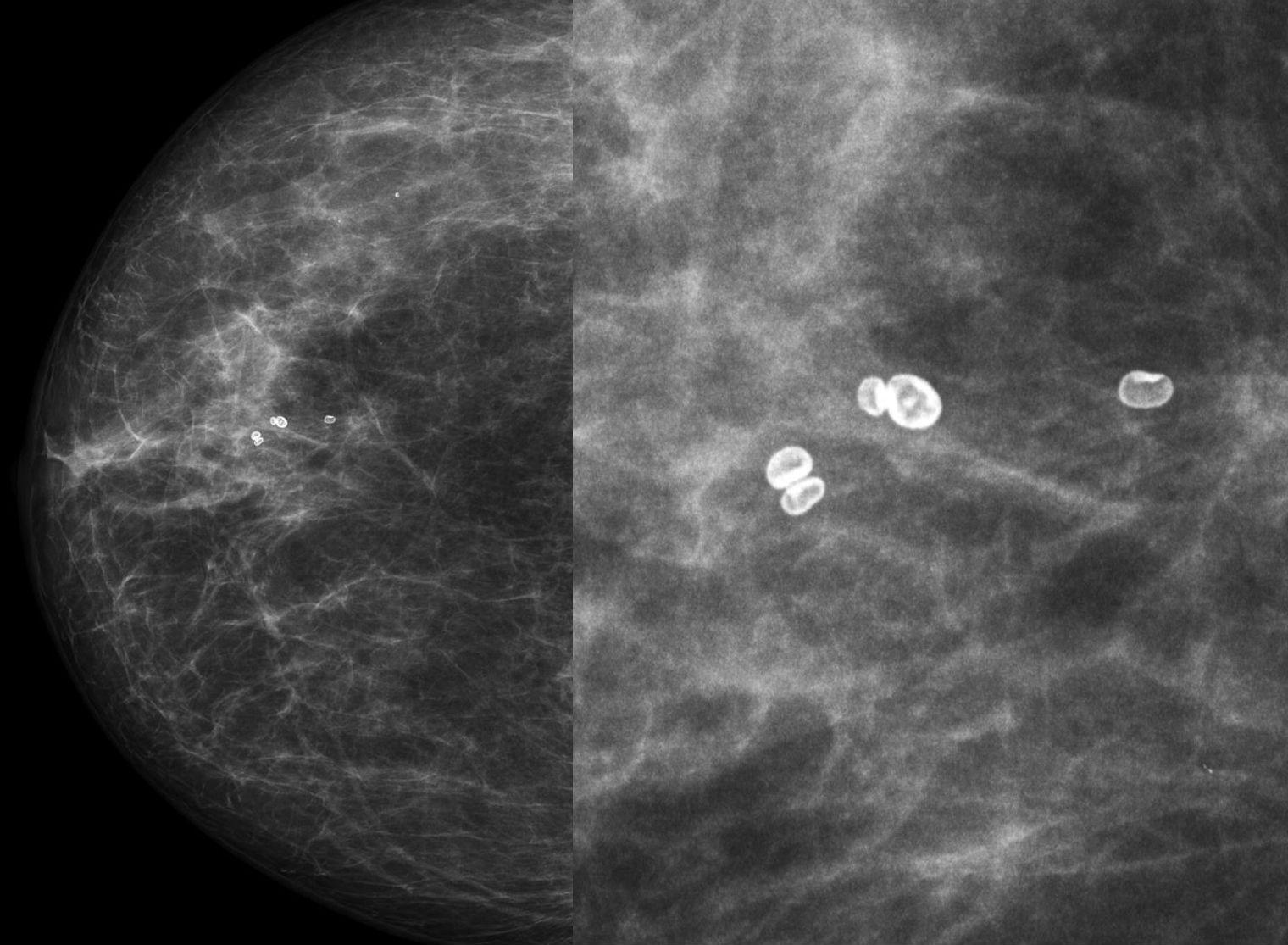 mammographie paris 19