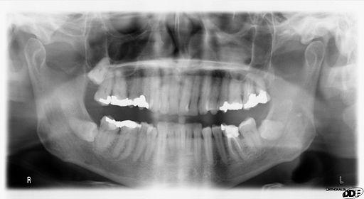 radiologie dentaire paris 19