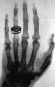 premiere radiographie image