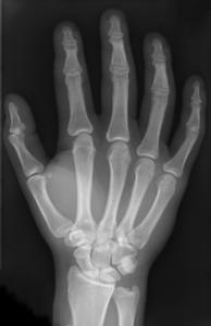 radiographie osseuse